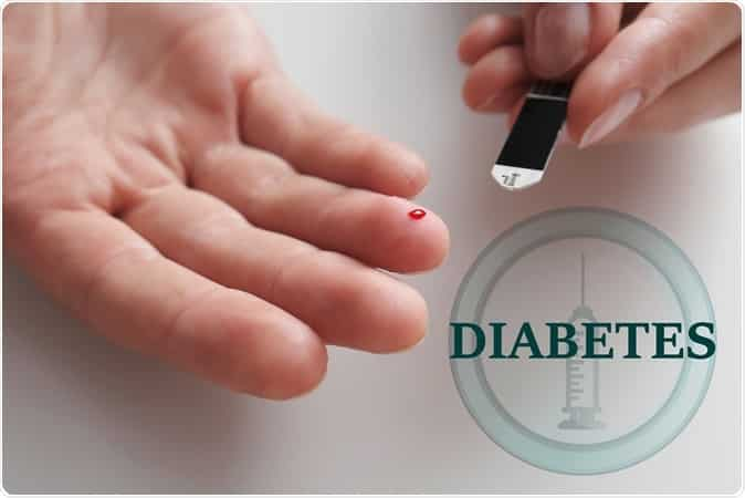 diabetes mellitus picture