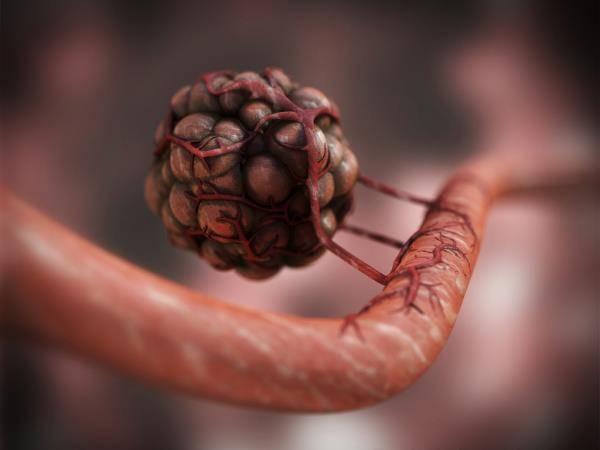 Angiogeneza tumora