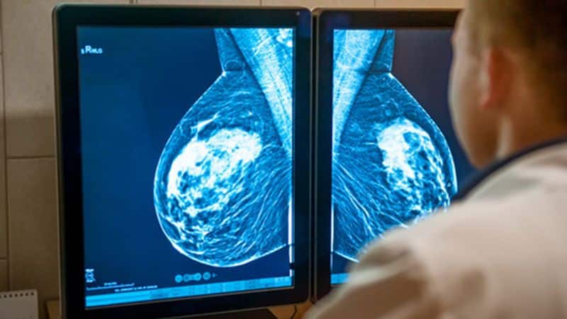 breast cancer image therapy