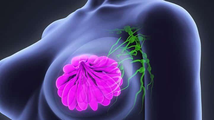 svest o raku dojke
