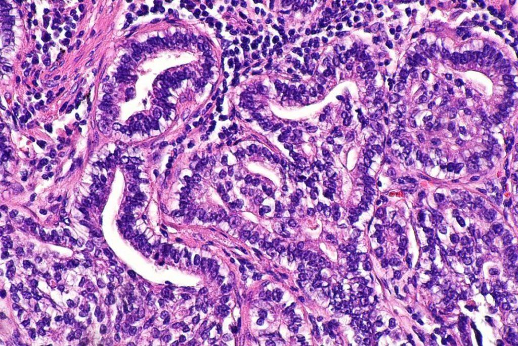 adenokarcinom rak debelog creva metastaze