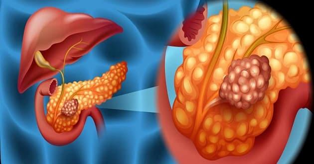 karcinom izgled slika