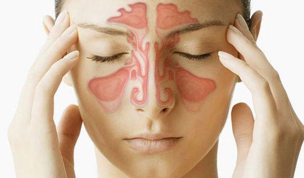 Akutni rinosinusitis