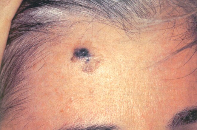 Desmoplastic melanomas
