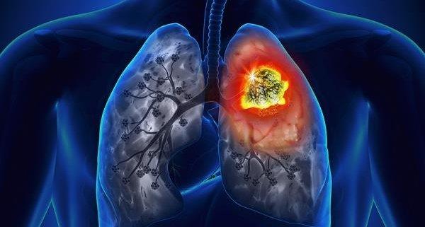 Mikrocelularni karcinom pluća