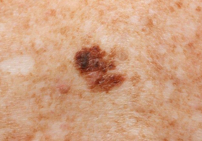 Superficially spreading melanoma