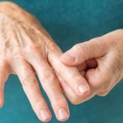 rheumatoid arthritis main picture