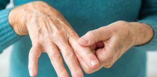 reumatoidni artritis glavna slika