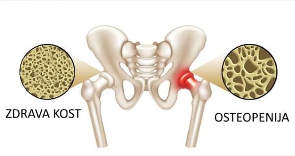Osteopenija kosti