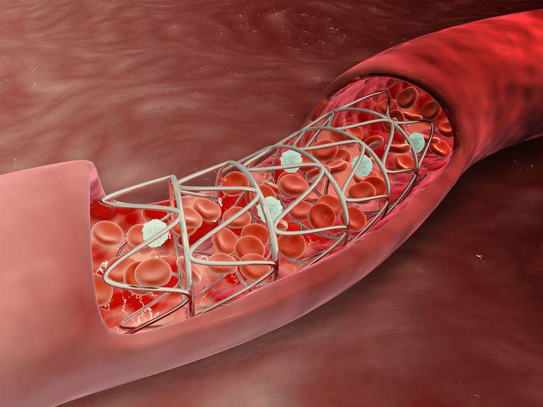 koronarni stent krv