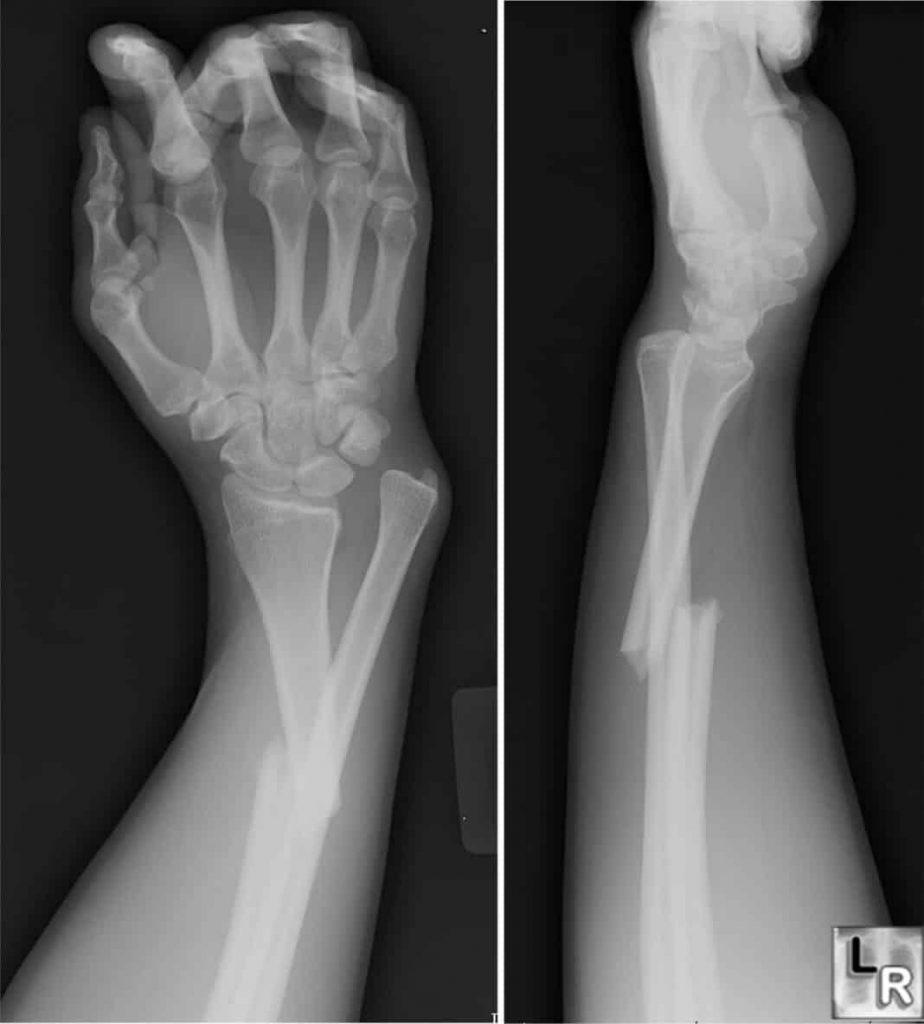 prelom kosti RTG