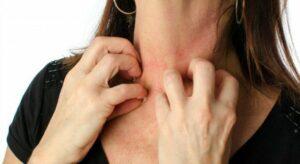 svrab po telu alergija
