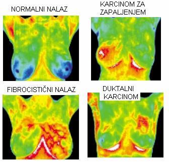 Termografija ženskih grudi
