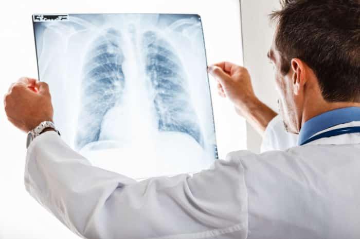 Kampf gegen Tuberkulose