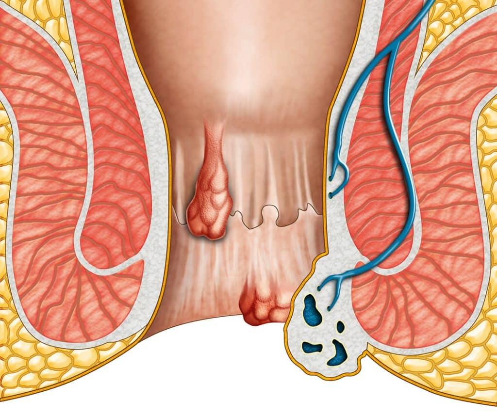 hemoroidi slika