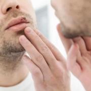 herpes simplex fever
