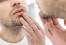 herpes simplex groznica