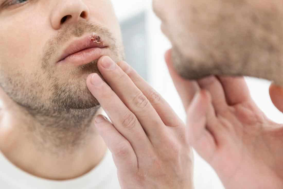 Forschung heilung herpes genitalis Herpes bald