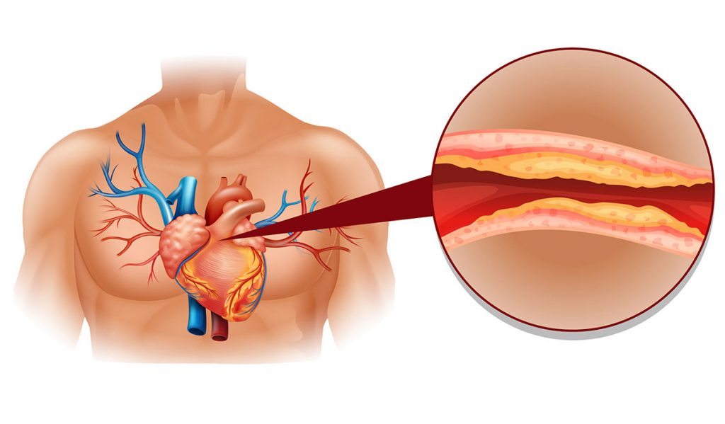 holesterol srce