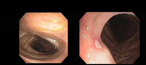 endoskopija debelog creva