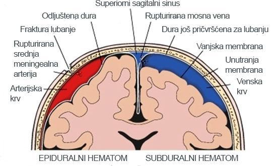 epiduralni hematom