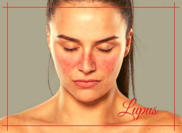 lupus bolest