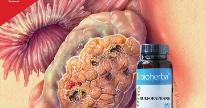kancer rak jajnika