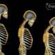 ostoporoza lečenje prirodnim putem
