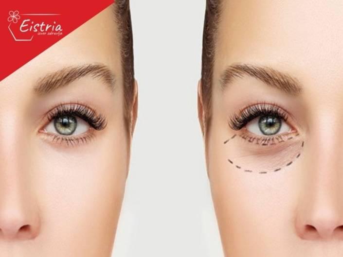 BLEFAROPLASTIKA operacija očnih kapaka