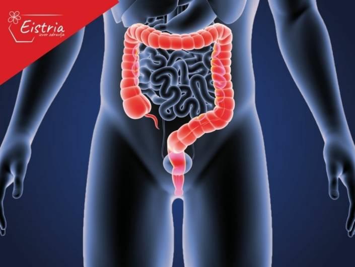 prirodni tretmani za rak debelog creva